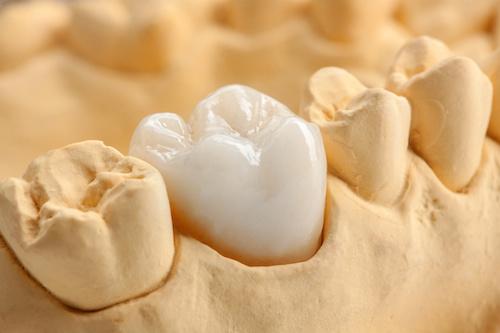 Zahnersatz: Zahnkrone mit der Cerec-Methode