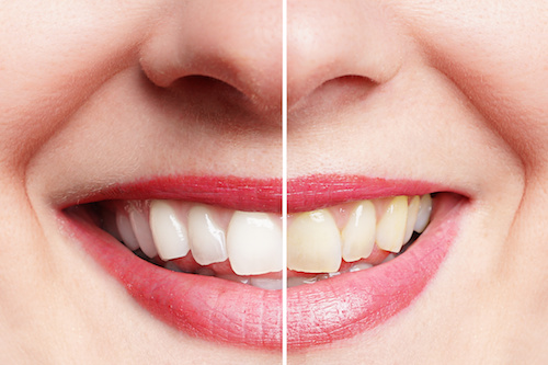 Frau vor und nach dem Zähne bleichen