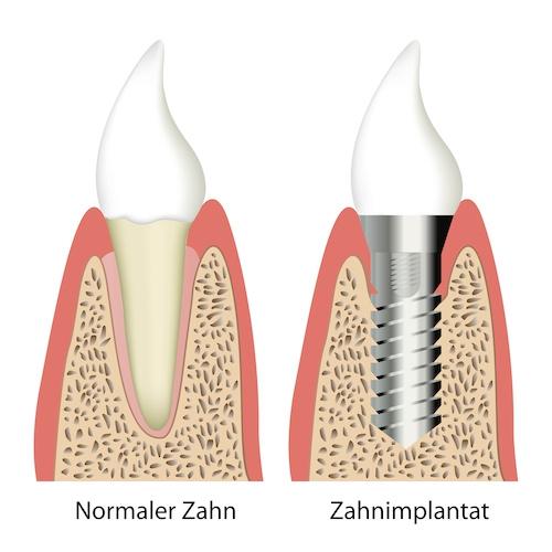 Implantate / Zahnimplantate in unserer Zahnarztpraxis in Buxtehude