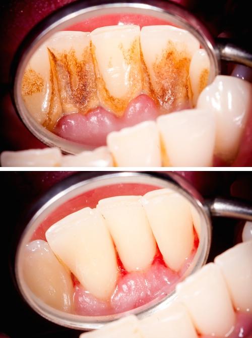 Zahnsteinentfernung: Vorher und nachher