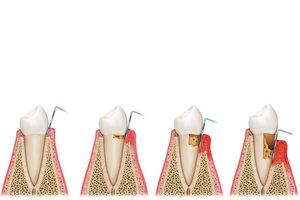 Parodontologie / Parodontitis-Behandlung in Buxtehude