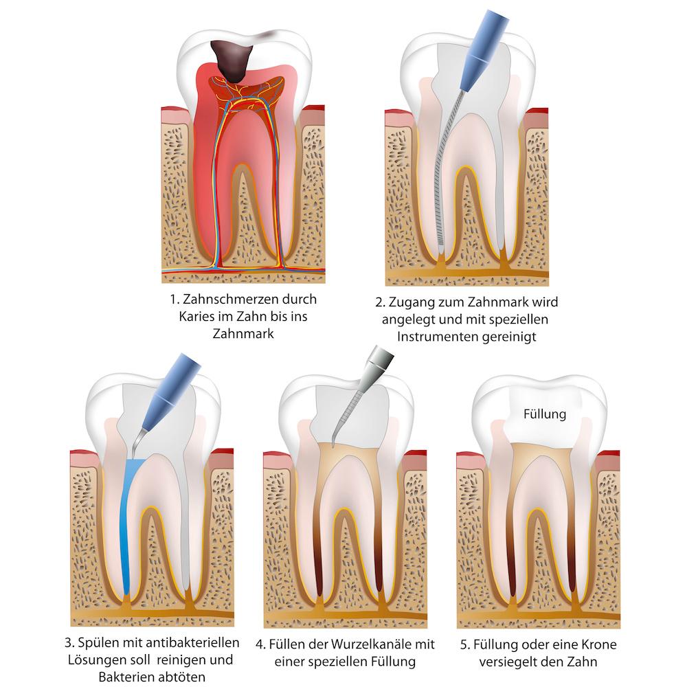 Endodontie / Wurzelbehandlung in Buxtehude