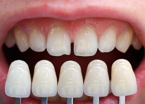 Veneers oder Luminates: Hauchdünne Kunststoff- oder Keramikschalen, die auf die sichtbaren Zahnflächen aufgeklebt werden.